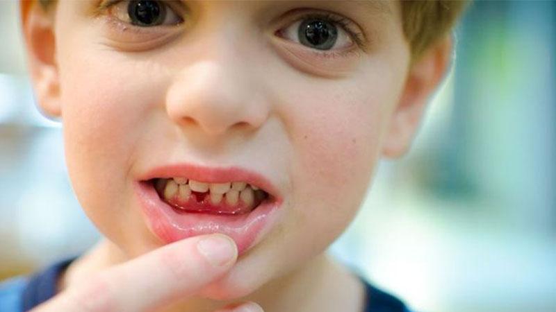 Inilah-cara-merawat-gigi-susu